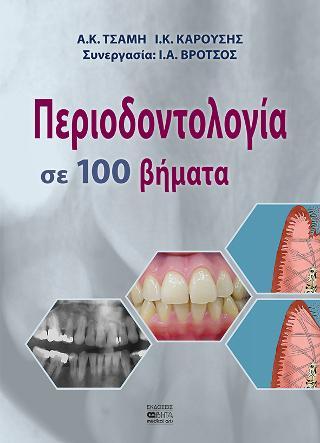 Περιοδοντολογία σε 100 Βήματα