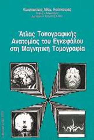 Άτλας τοπογραφικής ανατομίας του εγκεφάλου στη μαγνητική τομογραφία