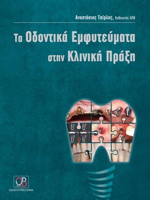 Τα οδοντικά εμφυτεύματα στην κλινική πράξη